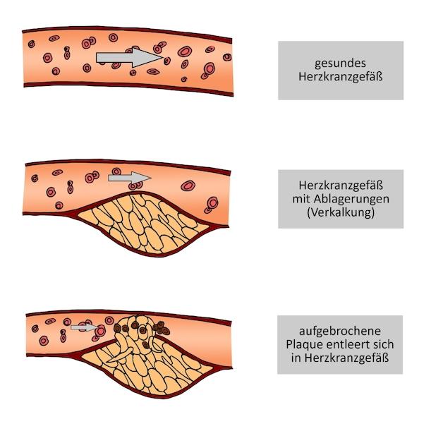 Die Entzündung um den Nagel auf dem Bein die Behandlung