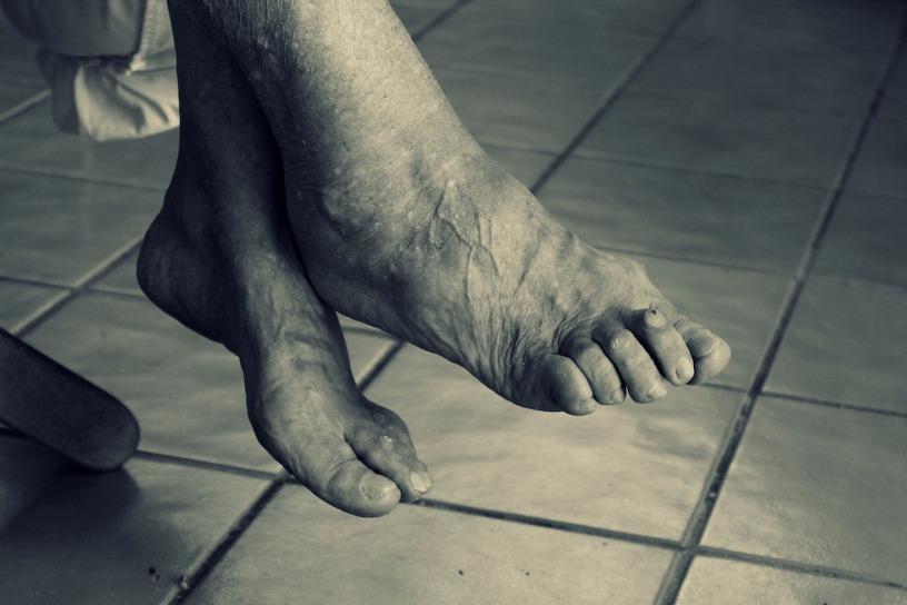 High Heels ohne Hallux: So verhindert frau den Ballenzeh